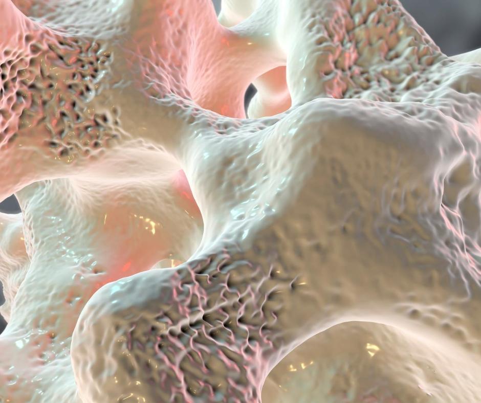 bone density image